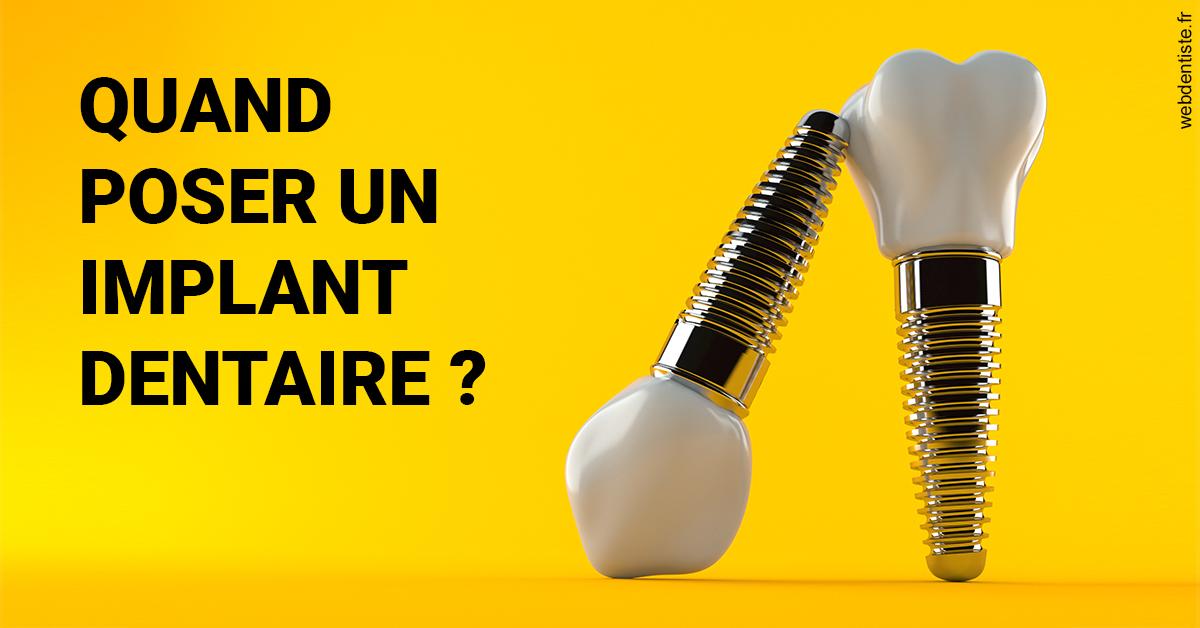 https://dr-eric-dumolard.chirurgiens-dentistes.fr/Les implants 2